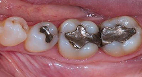 Safe-Removal-of-Mercury-Fillings