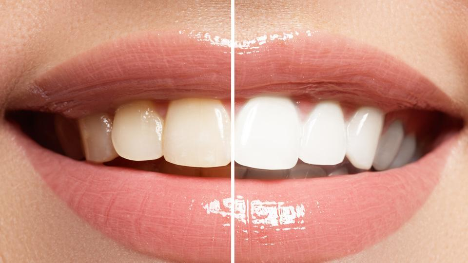 Clamping Down on Illegal Teeth Whitening