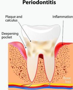 Gum_Disease_and_Periodontitis