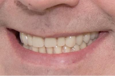full dentures john