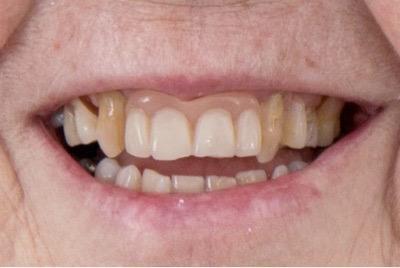 full dentures patricia