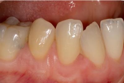 open tooth necks