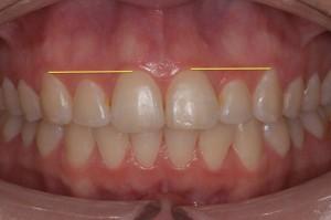 surgical gum